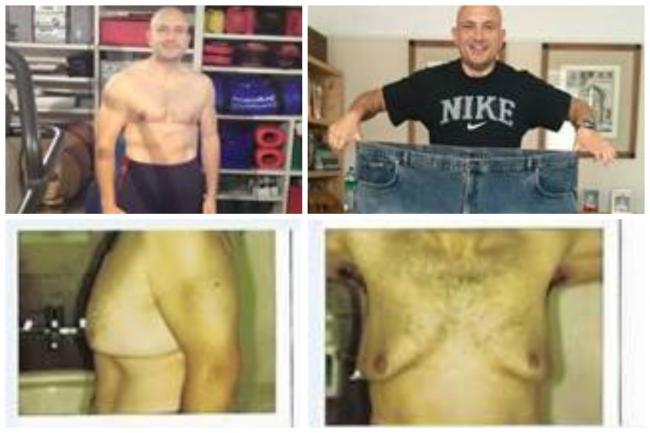 Symptoms abdominal bloating weight loss image 3